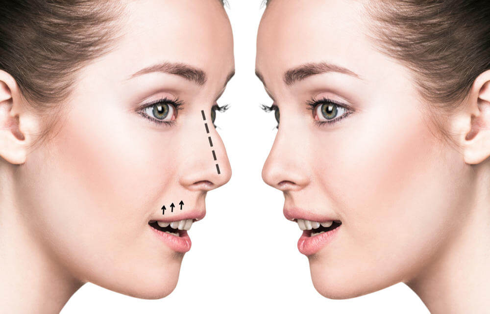 Uneven Nose Shape | True You Skin Clinics