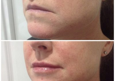 15-skin-clinic-leeds-lip-filler-3