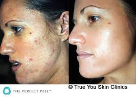 19-skin-clinic-leeds-perfect-peel-2