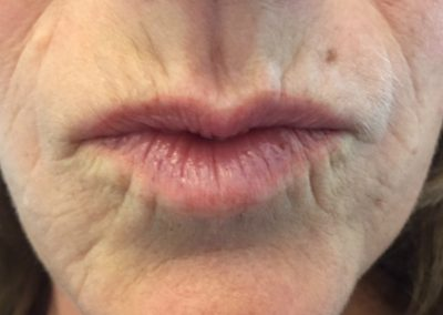 true-you-skin-clinics-lip-lines-image1