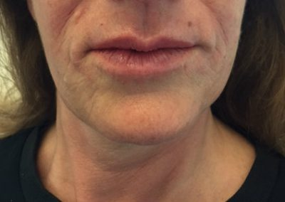 true-you-skin-clinics-lip-lines-image2.jpg