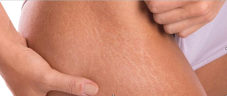 What Are Stretch Marks   True You Skin Clinics
