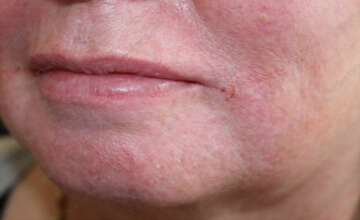 true-you-skin-clinics-Lines-After