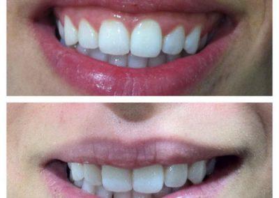 05-skin-clinic-leeds-botox-gummy-smile