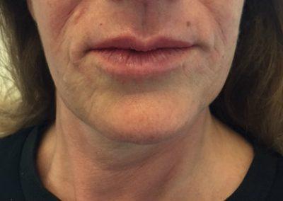 true-you-skin-clinics-lip-lines-image2.jpg